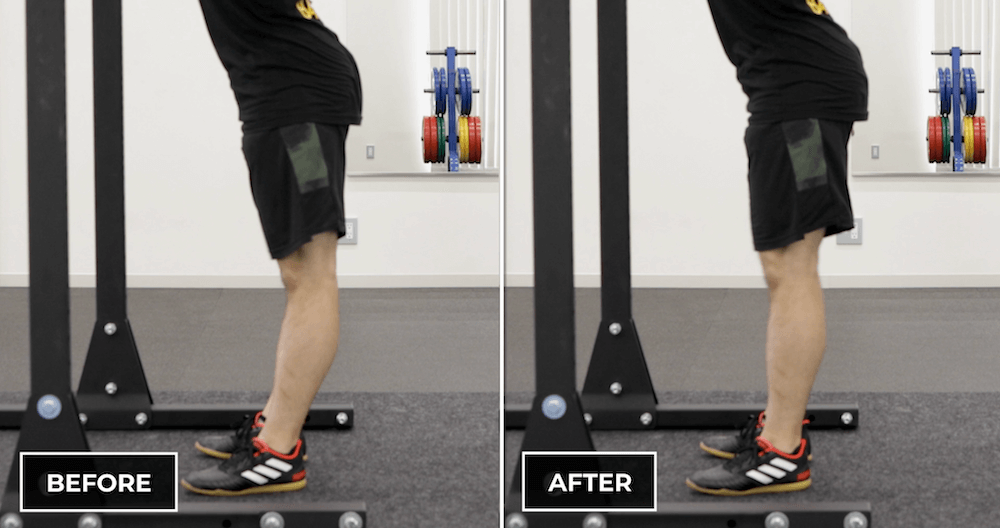 The Squat Ascent - be careful to avoid knee hyperextension